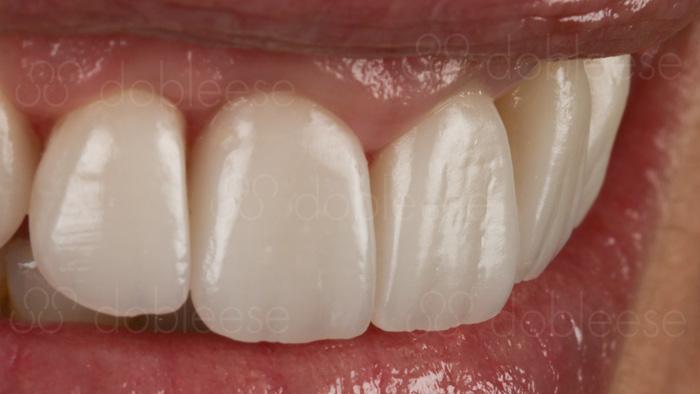 carillas dentales son para siempre