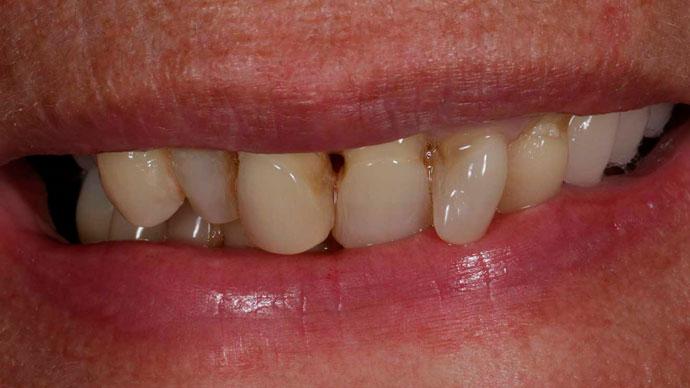 implantes dentales en 24 horas caso antes sevilla