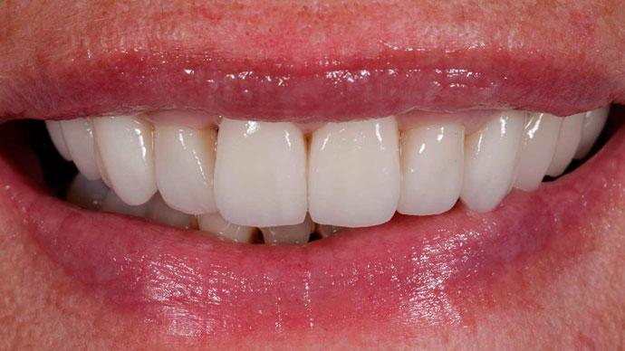 implantes dentales en un dia resultado dobleese