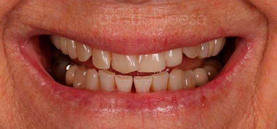 Dientes antes despues carillas dentales