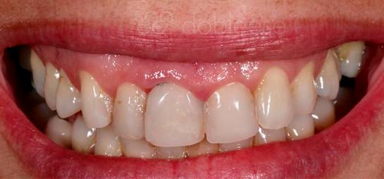 tratamiento dental antes despues
