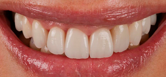 tratamiento dental antes despues dobleese