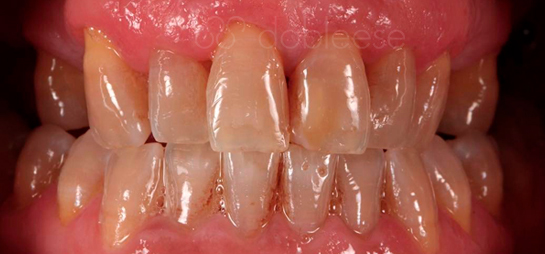 dientes antes despues clinica dental dobleese