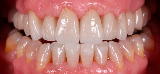 estetica dental antes despues sevilla