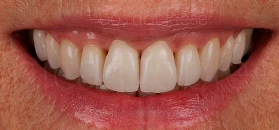 antes despues dientes sevilla