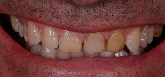 Dientes antes despues carillas porcelana