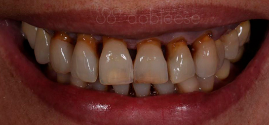 antes despues implante dental sevilla