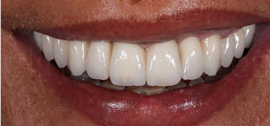 antes despues implantes dentales sevilla