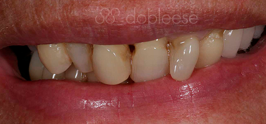 Implantes dentales antes después