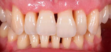 tratamiento periodontal antes despues