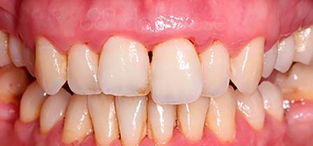 tratamiento periodontal antes despues sevilla