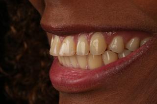 estetica-dental-caso-real-sevilla-luz-1a