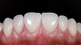 estetica-dental-caso-real-sevilla-luz-1d