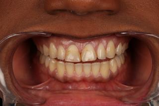 estetica-dental-caso-real-sevilla-luz-2a