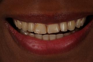 estetica-dental-caso-real-sevilla-luz-3a