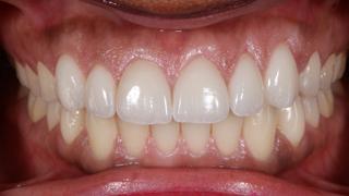 estetica-dental-caso-real-sevilla-luz-3d