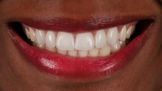 estetica-dental-caso-real-sevilla-luz-4d