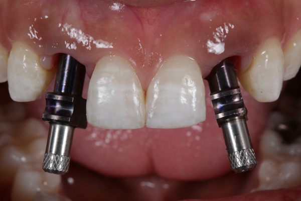 rechazo implantes dentales