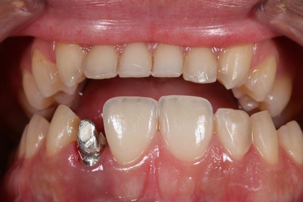 signos de rechazo de implantes dentales