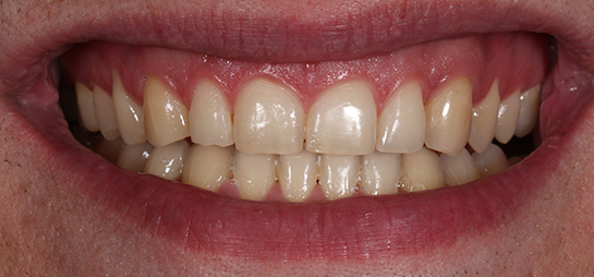 dientes antes despues blanqueamiento dental