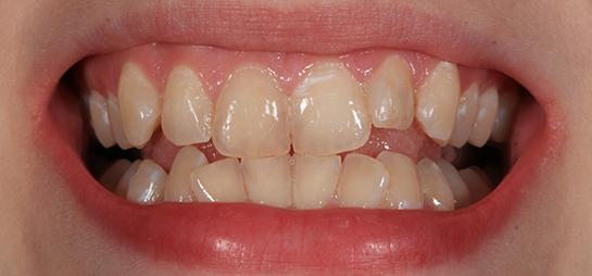 dientes amarillos antes despues