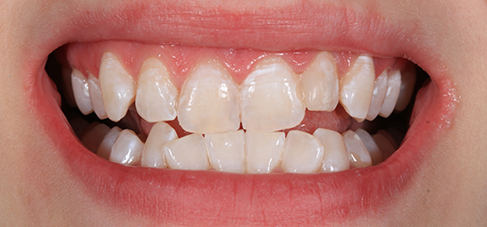 antes despues blanqueamiento dental