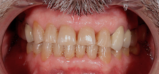 Blanqueamiento dental laser antes despues