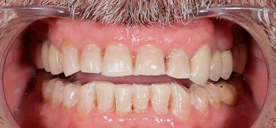 Blanqueamiento dental antes despues sevilla