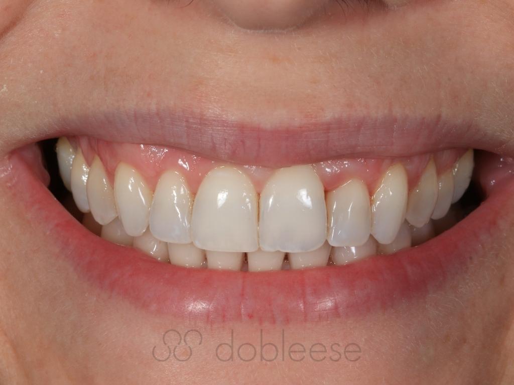 tengo-los-dientes-amarillos-que-hago