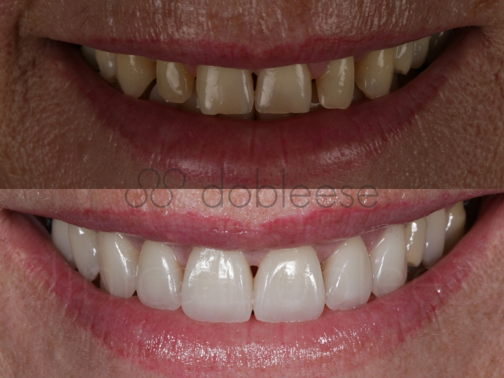 que-soluciones-hay-para-los-dientes-amarillos